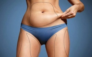 Differences Between Liposuction and Tummy Tuck