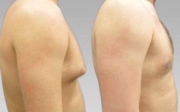 What is the male breast reduction?