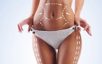 10 things to know and 10 questions to ask for Liposuction